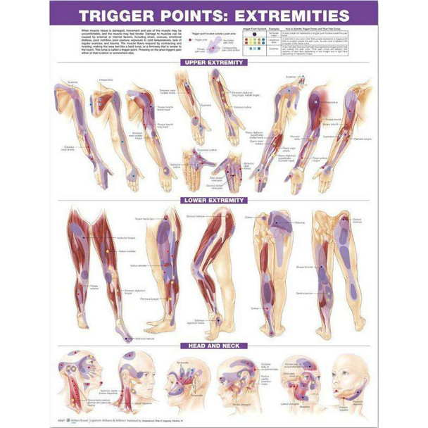 Trigger Point chart, Extremities