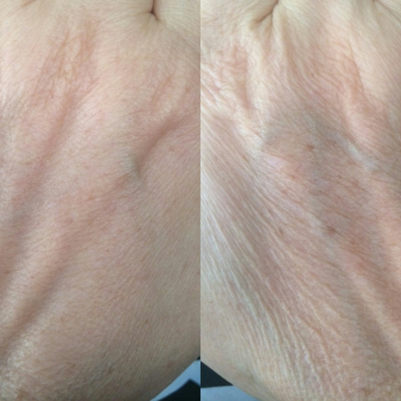 left hand vs right hand! Kaitlyns on the go proof of her miracle cream!