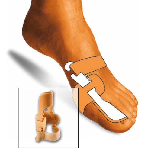 Night Time Hallux Valgus (Bunion) Corrector