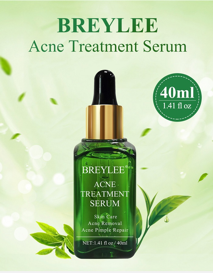 breylee-acne-310.jpg