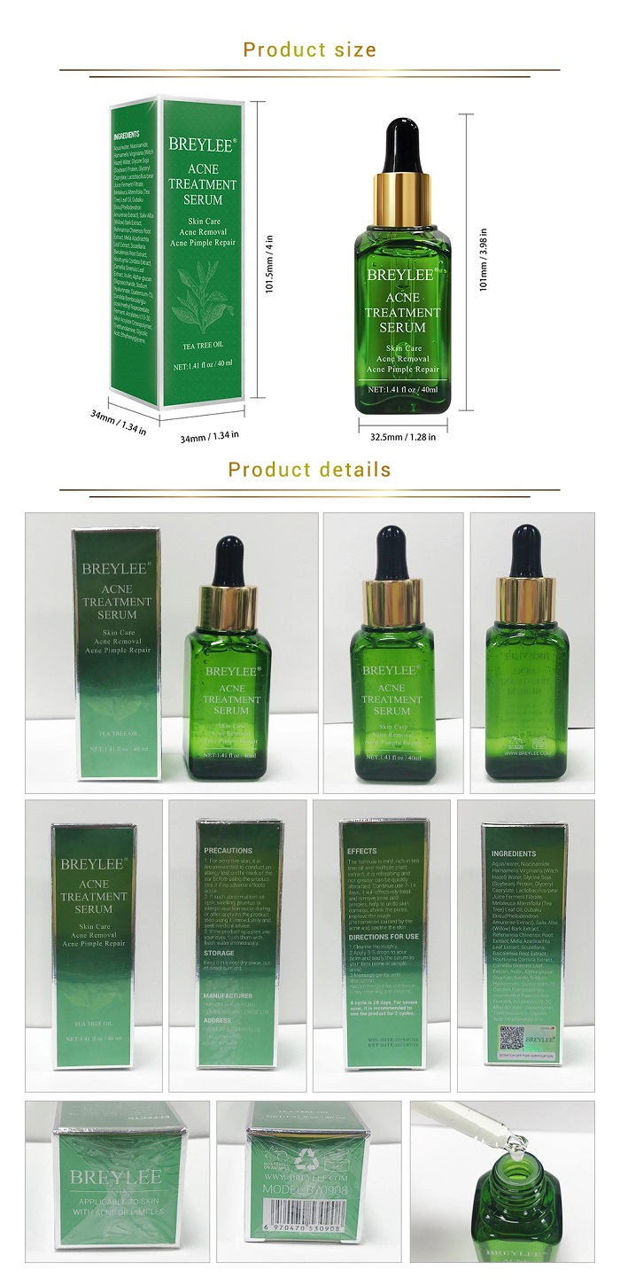 breylee-acne-320.jpg