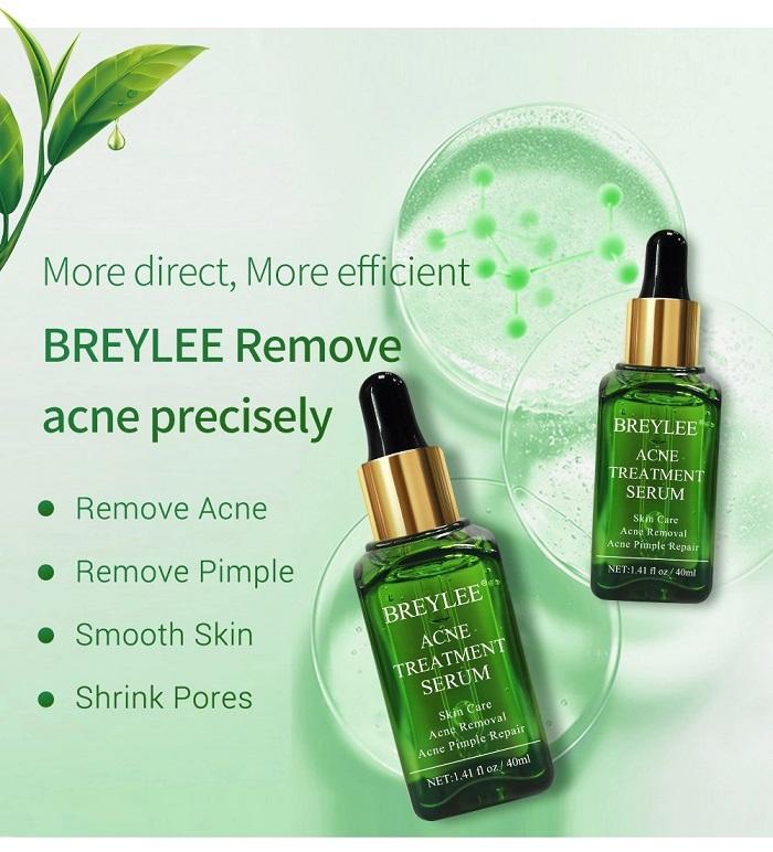 breylee-acne-330.jpg