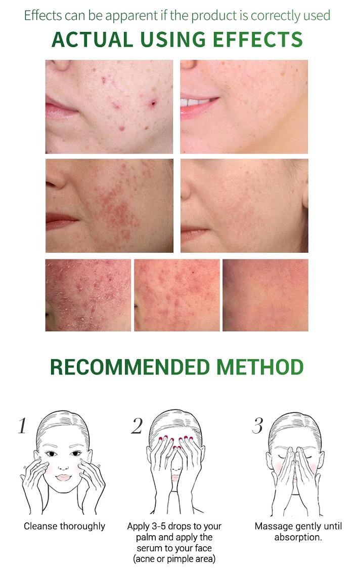 breylee-acne-360.jpg