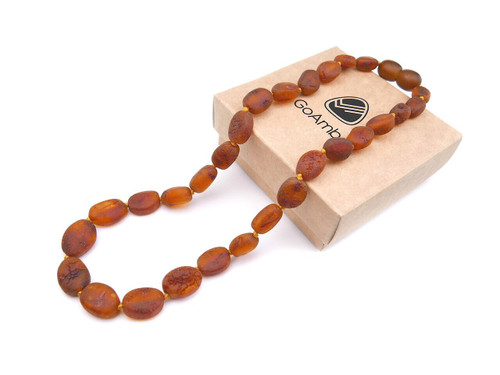 Maximum strength cognac raw amber teething, reflux and colic necklace