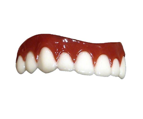 Hollywood Game Show Smile Upper Teeth Veneer Dental Distortions