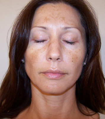 Types and Causes of Hyperpigmentation