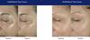Obagi ELASTIderm Eye Treatment Cream Before and After