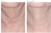 Revision Skincare Nectifirm® results