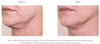 Revision Skincare Nectifirm