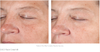 Revision Skincare D·E·J Face Cream™  Before & After