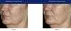 Obagi Elastiderm Before and After