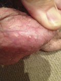 Beginning stage bumps surrounds this pus head molluscum on the scrotum.