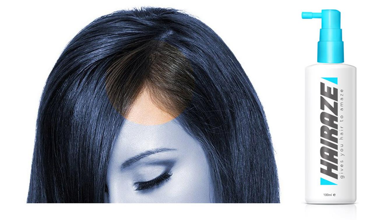 Hairaze - Revolutionary Natural Hair & Scalp Treatment For Thinning Hair