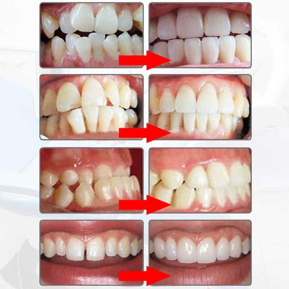 """New Adult Dental Tooth Orthodontics Dental Braces Teeth Whitening Dental Orthotics Tooth Alignment Tool Orthodontic Retainers"""""""