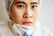 COVID-19  Mask Dermatitis and Emu Oil - Acne, Rosacea and Rash