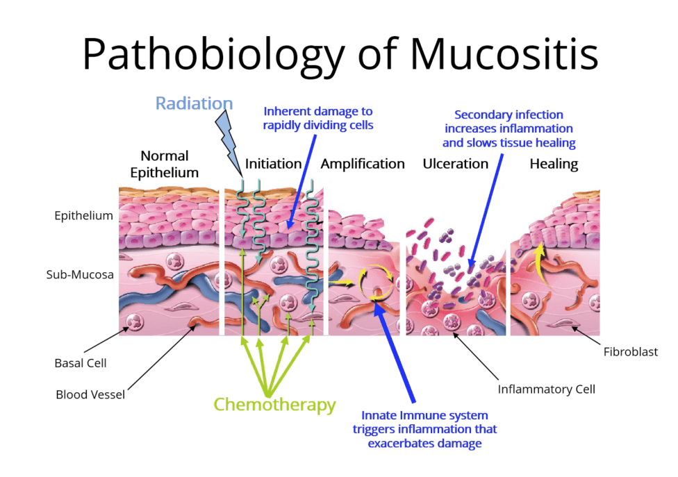 mucositis.png
