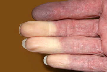 What is Raynaud's Disease?