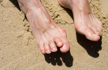 Bunions - The Mediworld Footcare Guide