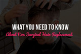 What you NEED to Know About Non Surgical Hair Replacement