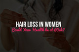 Hair Loss in Women--Could Your Health be at Risk?