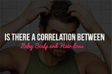 Is There A Correlation Between Itchy Scalp and Hair Loss