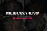 Minoxidil Vesus Propecia