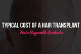 Typical Cost Of A Hair Transplant