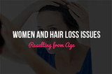 Women and Hair Loss Issues Resulting from Age