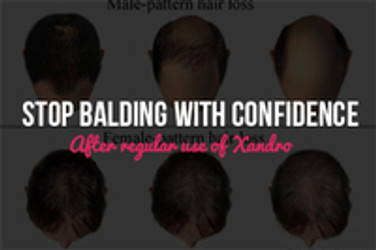 Stop Balding with Confidence