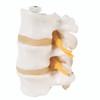 Anatomical Model - 3 Lumbar Vertebrae, flexibly mounted