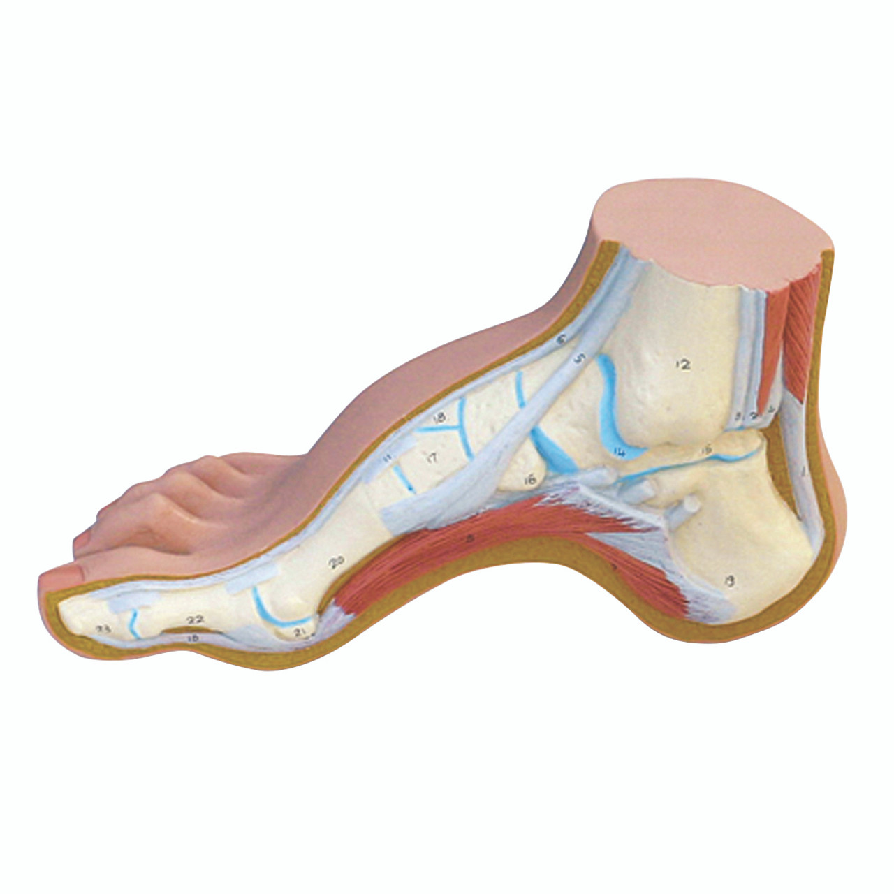 Anatomical Model - Hollow Foot (Pes Cavus)