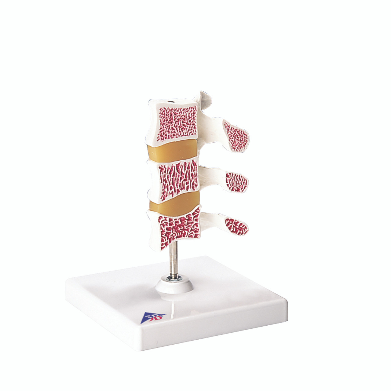 Anatomical Model - Deluxe Osteoporosis Model (3 Vertebrae)