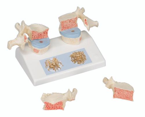 Anatomical Model - osteoporosis model