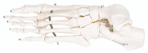 Anatomical Model - loose bones, foot skeleton (wire)
