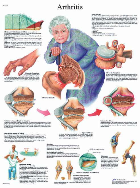 Anatomical Chart - arthritis, paper