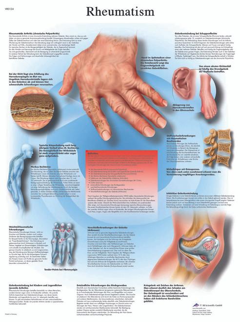 Anatomical Chart - rheumatic diseases, paper