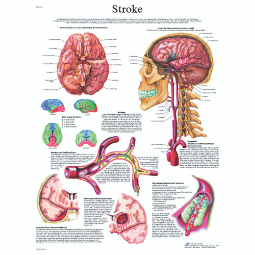 Anatomical Chart - stroke chart paper
