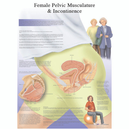 Anatomical Chart - female urinary incontinence chart, laminated