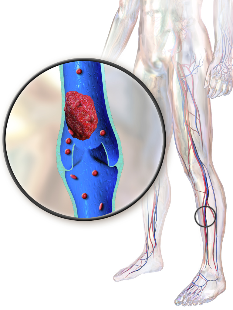 Intermittent Pneumatic Compression and Preventing Deep Vein Thrombosis & Pulmonary Embolism