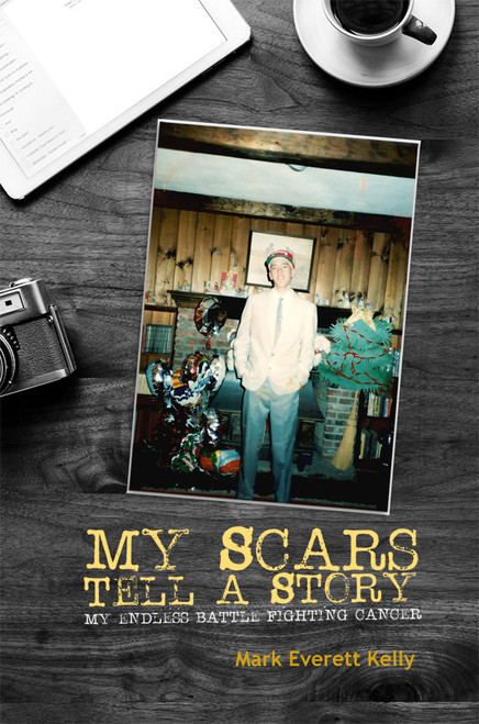 My Scars Tell a Story - eBook