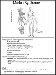 7 Facts on Marfan Syndrome:  Pediatric Board Review