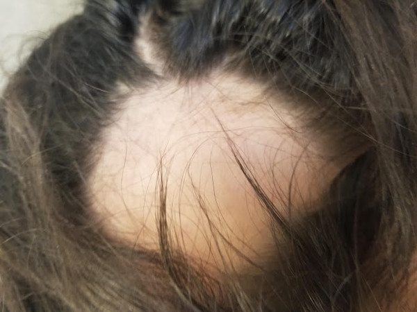 8 year old with patchy distribution of hair loss