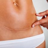 Skin Care Scar Therapy Oil