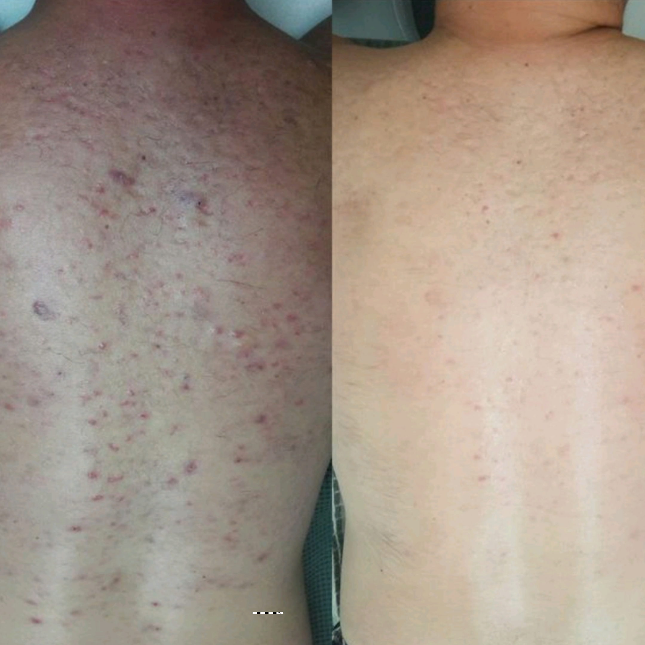 Body Acne Before & After Photo