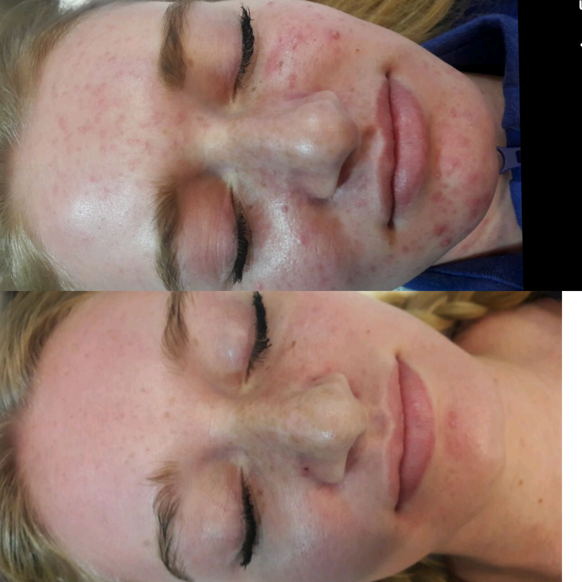 Acne Rosacea Before & After Photo