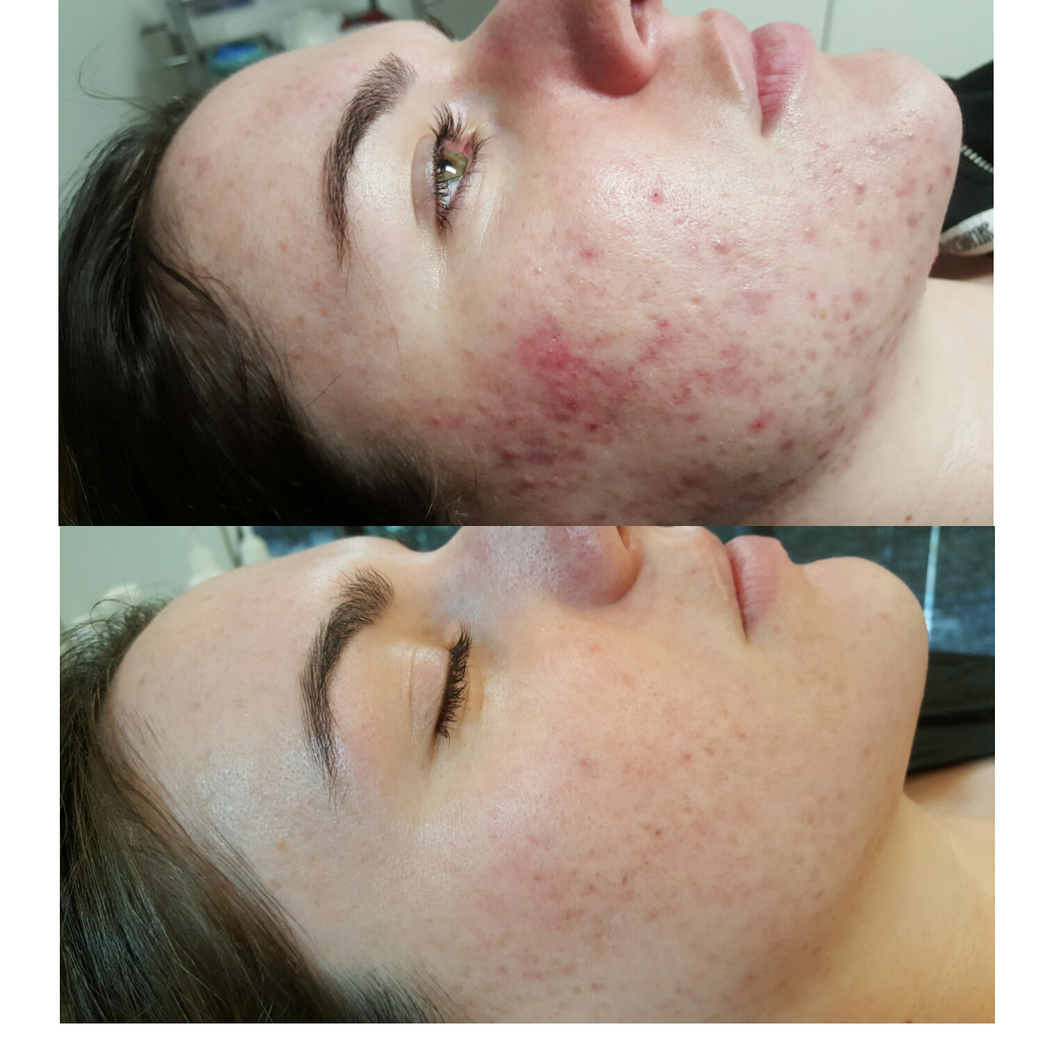 Dry Skin Before & After Photo