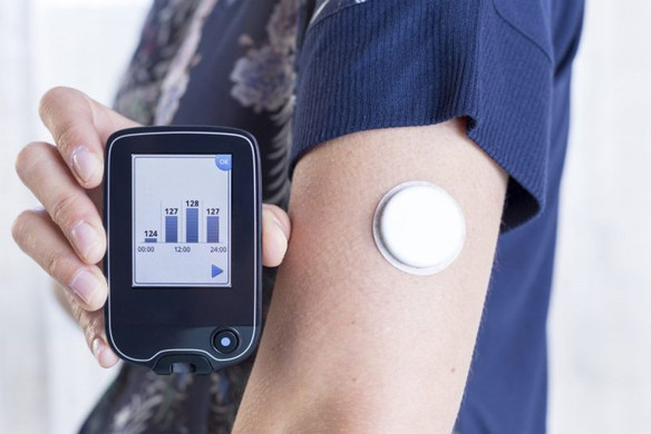 Continuous Glucose Monitoring Changes Makes Holistic Diabetes Management Easier
