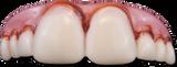 /megabucks-teeth/