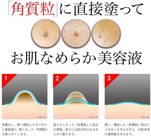 Ipocare EX Жидкость для удаления кожных образований