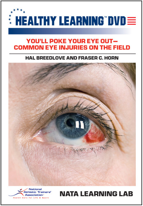 You'll Poke Your Eye Out-Common Eye Injuries on the Field